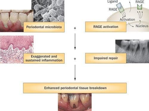 Diabetes Mellitus And Periodontitis: A Tale Of Two Common Interrelated Diseases