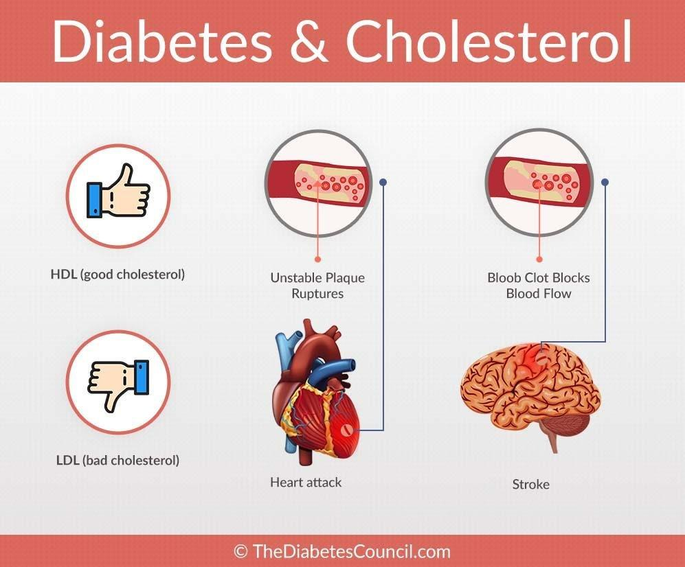 Diabetes And Cholesterol: What Is The Relationship?