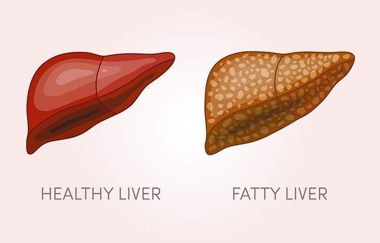 Fatty Liver And Diabetes