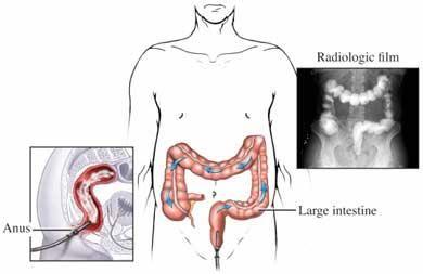 Diabetes And Bowel Movements