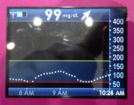 Type 1 Diabetes Finally Explained