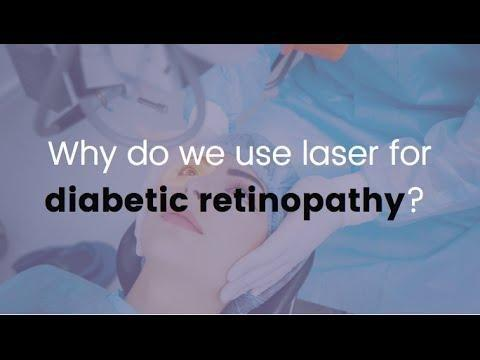 Diabetic Retinopathy Laser Treatment Recovery