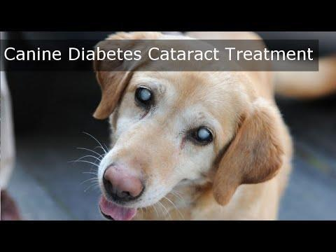 Cataract - Diabetes Self-management