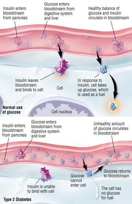 Prognosis Of Type 2 Diabetes