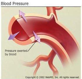 Can Low Blood Sugar Cause Low Blood Pressure