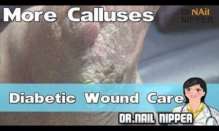 Can Diabetic Wounds Heal?