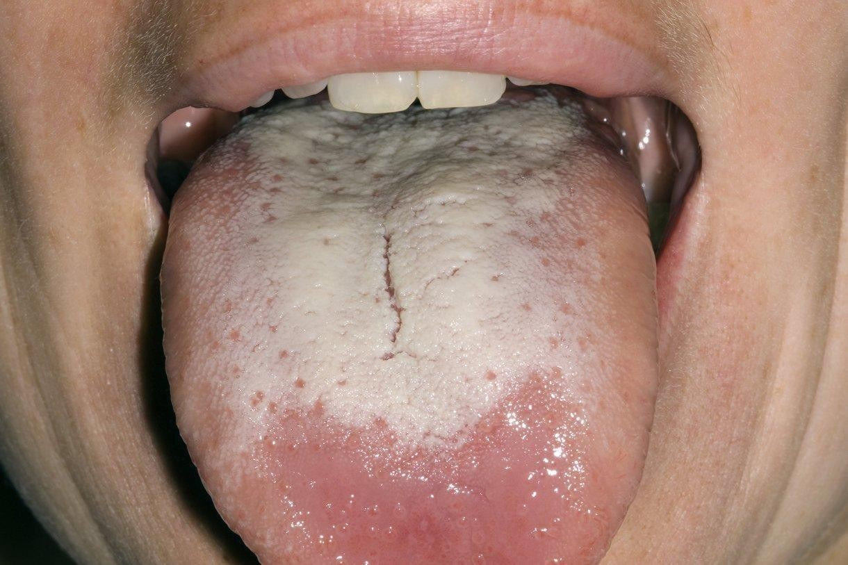 Can Diabetes Give You A White Tongue?