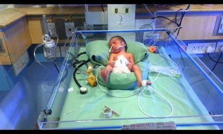 Hypoglycemia In Newborn Treatment