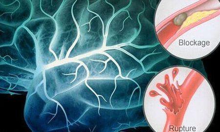 Diabetes Of The Brain Symptoms