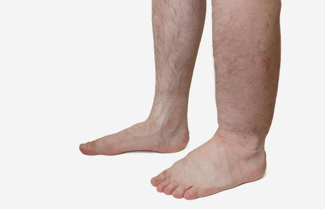 Everything You Need To Know About Edema