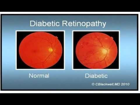Icd 10 Code For Proliferative Diabetic Retinopathy Without Macular Edema