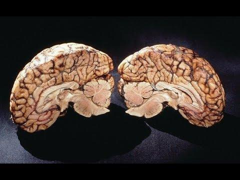 What Happens To The Human Brain When It Gets Old?