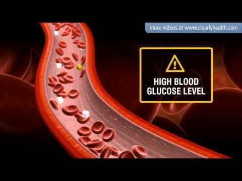 Is Insulin Safe