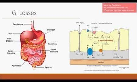 Icd 10 Code For Anion Gap Metabolic Acidosis