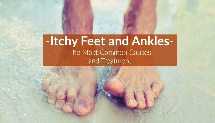 Itchy Feet And Ankles: The Most Common Causes And Treatment