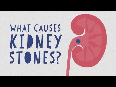 Can High Sugar Intake Cause Kidney Stones?