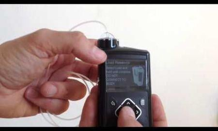 How To Use An Insulin Pump