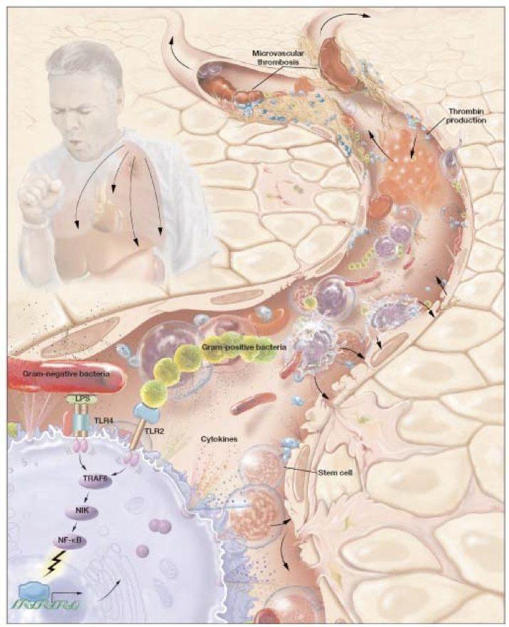 Sepsis Pathophysiology