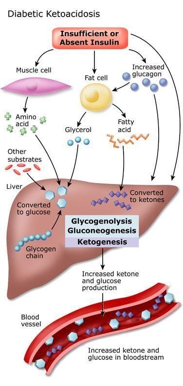 Diabetic Ketoacidosis: Symptoms,causes,treatment & Prevention
