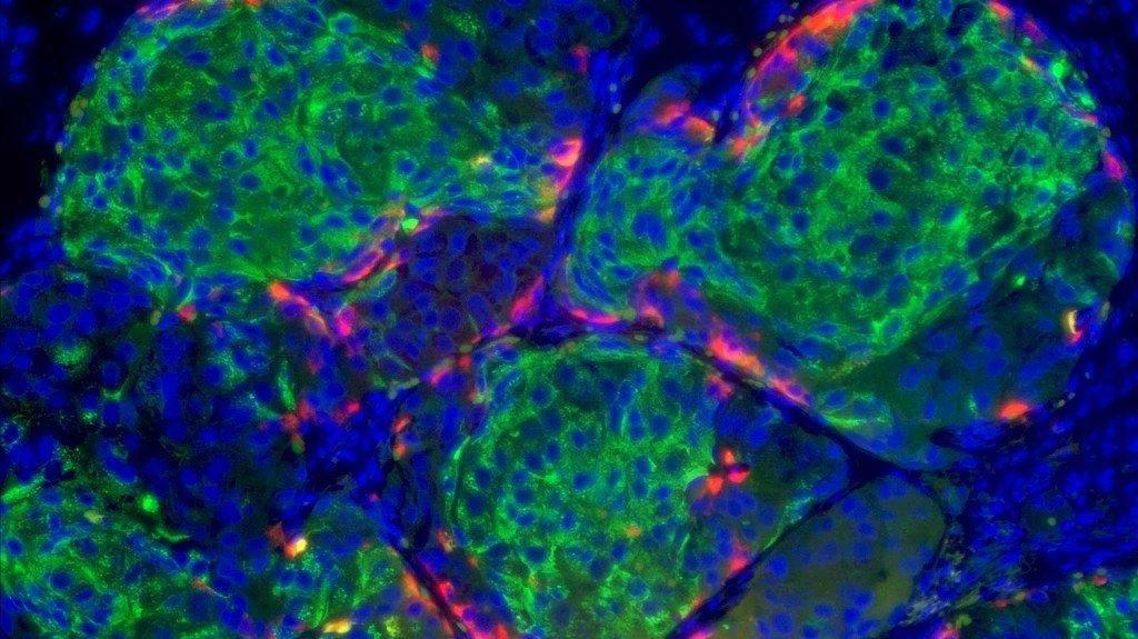 Insulin-Producing Stem Cells Could Provide Lasting Diabetes Treatments