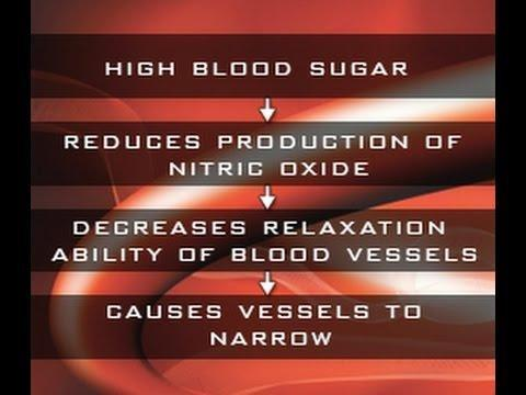 New Evidence Of How High Glucose Damages Blood Vessels Could Lead To New Treatments