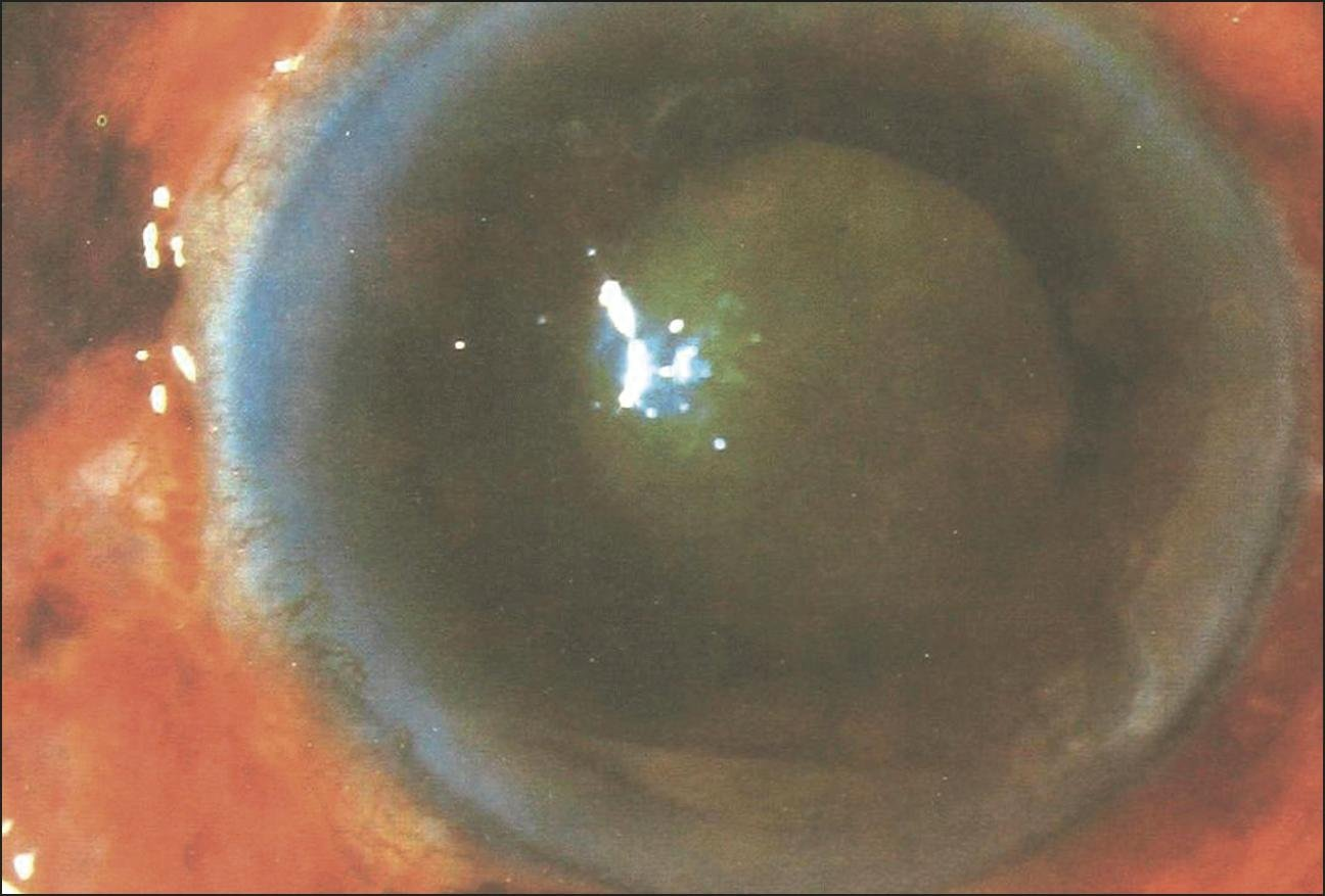 Green Cataract | Cataract And Other Lens Disorders | Jama Ophthalmology | Jama Network