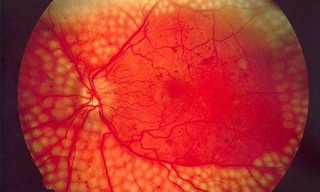 Proliferative Diabetic Retinopathy Icd 10