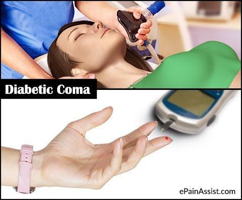 Diabetic Coma: Causes, What Happens When You Go Into A Diabetic Coma?