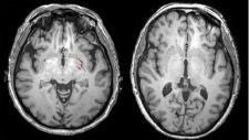 Scientists Studying Effect Of Ketogenic Diet On Brain Cancer