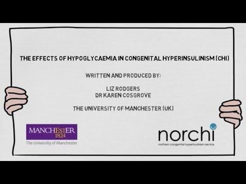 Ketotic Hypoglycaemia In Children With Transient Congenital Hyperinsulinism Of Infancy