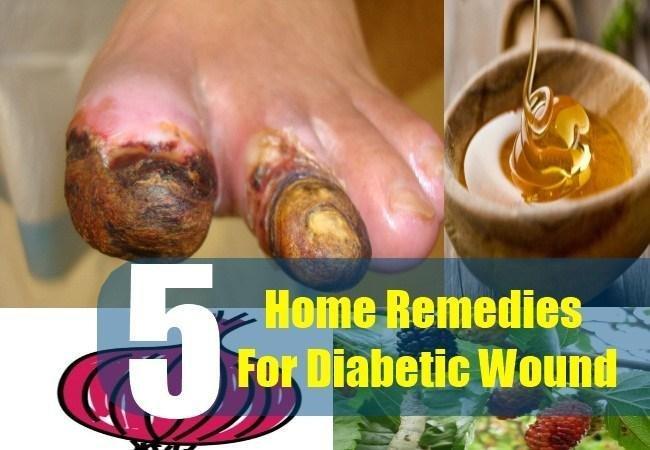 5 Effective Diabetic Wound Remedies