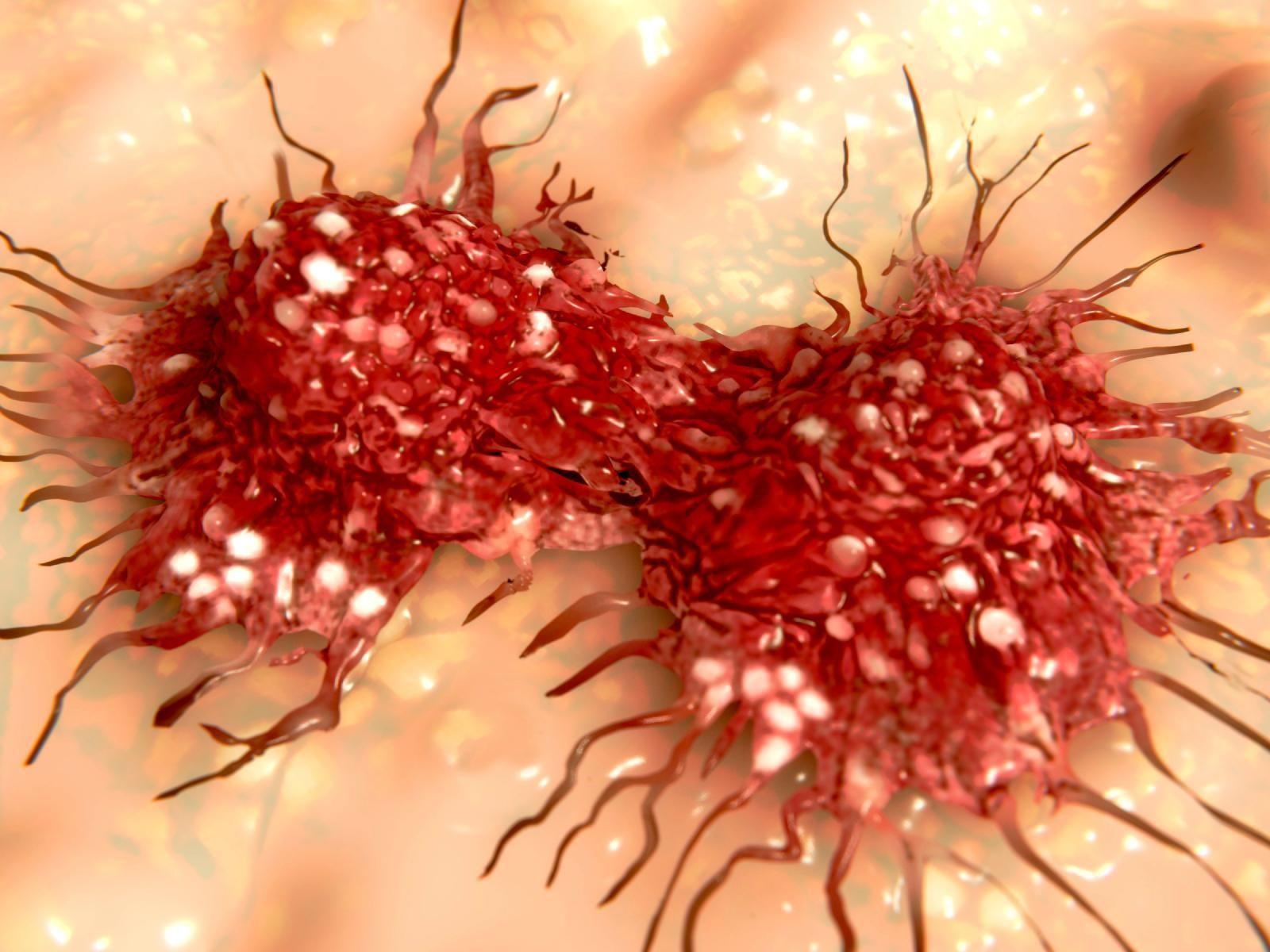 Metformin And Bladder Tumor