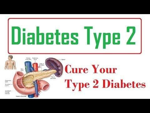 Type 1 Diabetes Mellitusclinical Presentation
