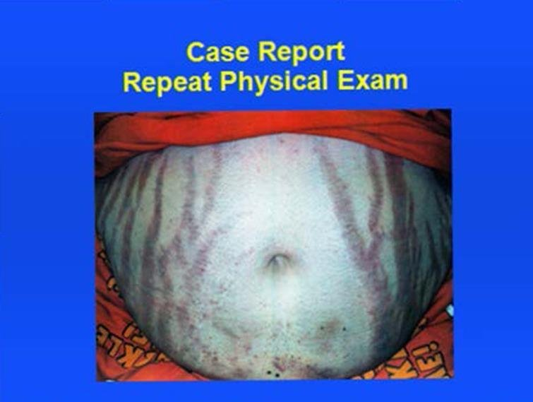 Case Of Diabetic Ketoacidosis As An Initial Presentation Of Cushing's Syndrome