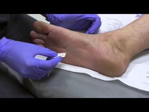 Diabetes Mellitus: Diabetic Foot And Ankle Care, Peripheral Neuropathy – Neurological Evaluation