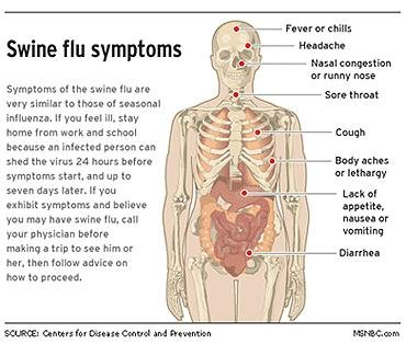 What Are The Symptoms Of Swine Flu?
