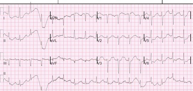 Patient With Severe Dka, Look At The Ecg