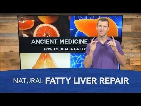 Diabetes Medicine Reduces Liver Fat In Nonalcoholic Fatty Liver Disease