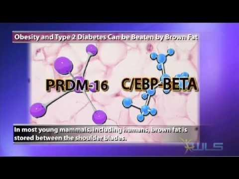 Type 2 Diabetes And Obesity A Review