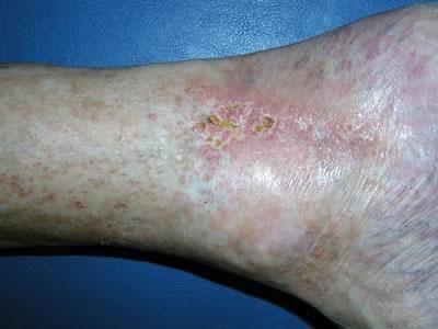 Diabetic Legs Pictures