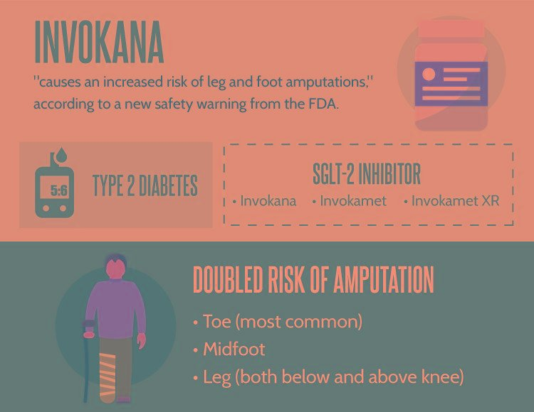Invokana Linked To Increased Risk Of Leg, Foot & Toe Amputations