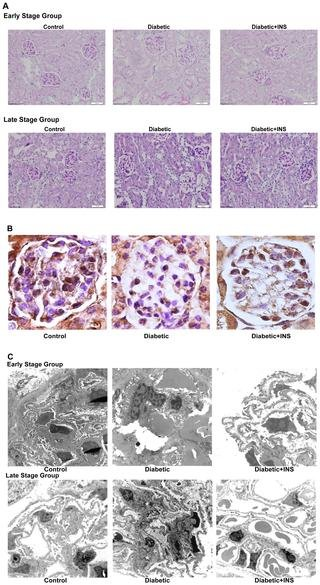 Effect Of Insulin On Ace2 Activity And Kidney Function In The Non-obese Diabetic Mouse