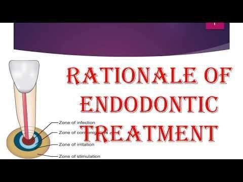 The Effect Of Diabetes Mellitus On Endodontic Treatment Outcome
