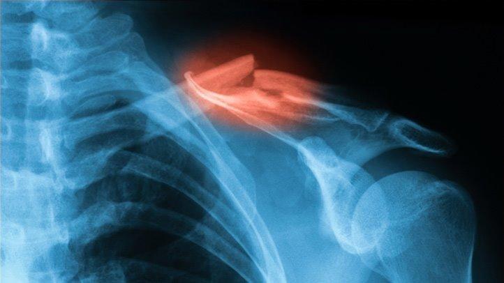 Diabetes And Healing Broken Bones