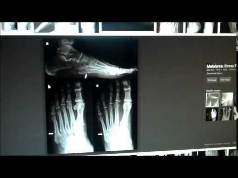 Diabetes Broken Bones Foot