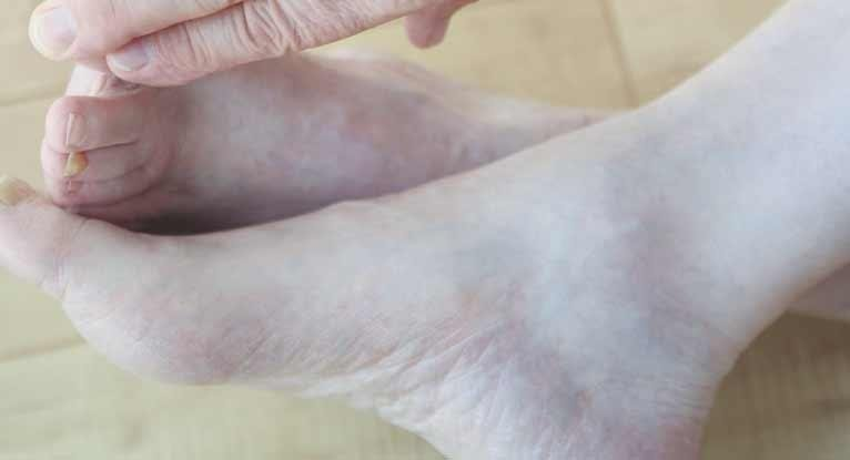 Gangrene And Diabetes: Know The Facts