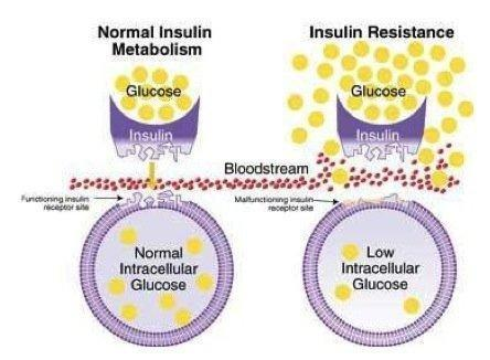 Insulin Resistance Fung