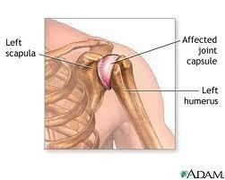 Metformin Shoulder Pain
