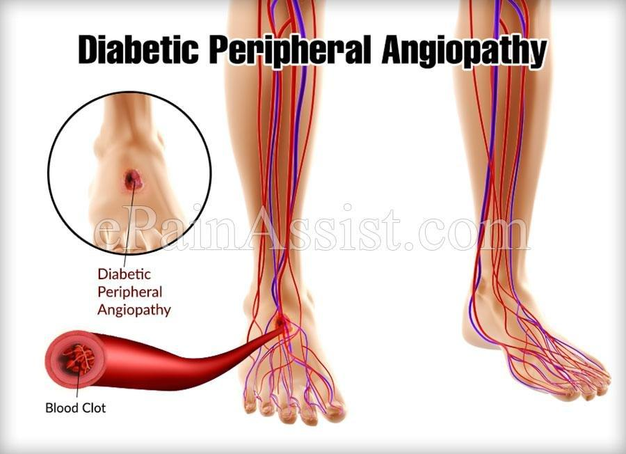 Diabetic Peripheral Angiopathy: Causes, Symptoms, Treatments, Prevention, Diagnosis
