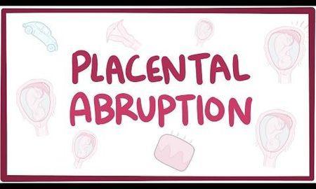 Ketoacidosis In Pregnancy Symptoms